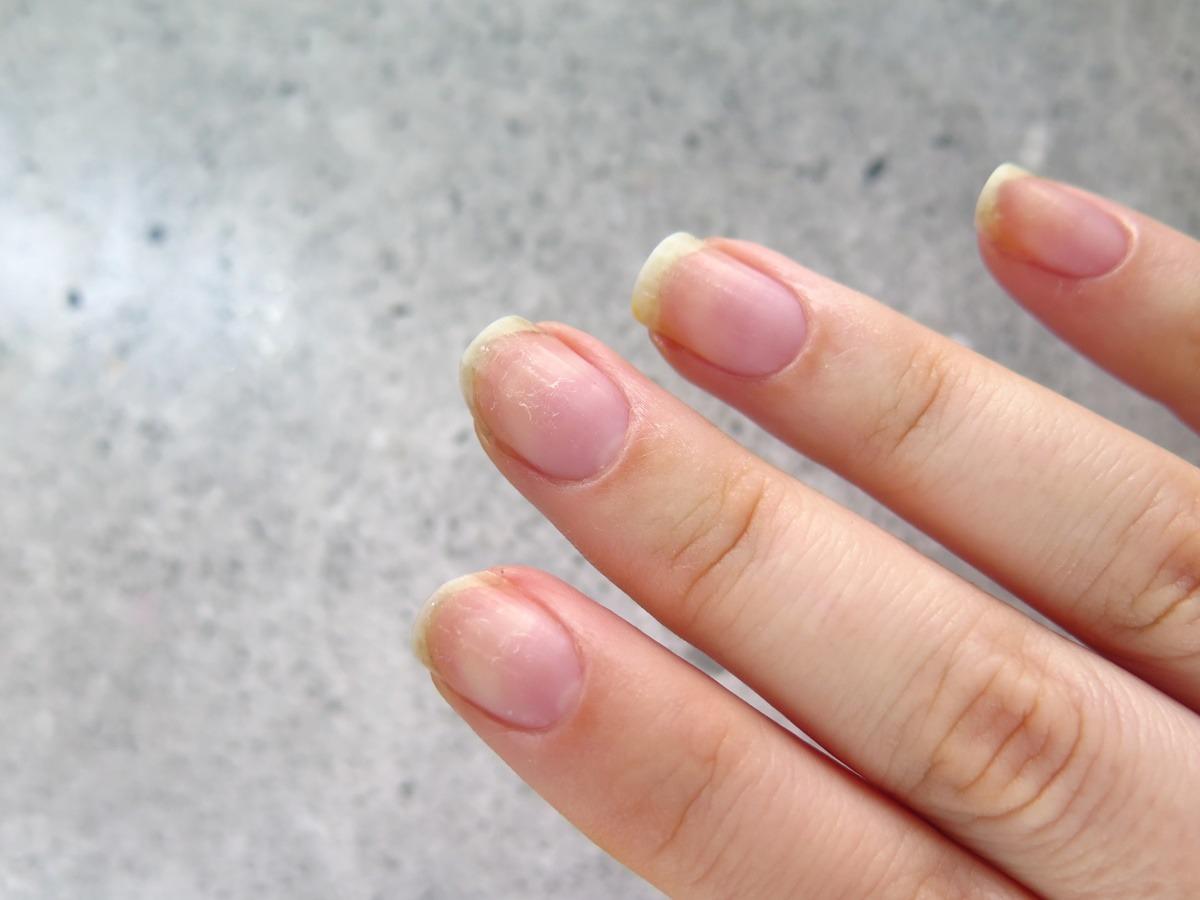 pielęgnacja paznokci zniszczonych rozdwojonych suchych łamliwych